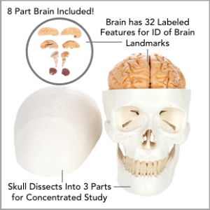 Dissected skull and brain