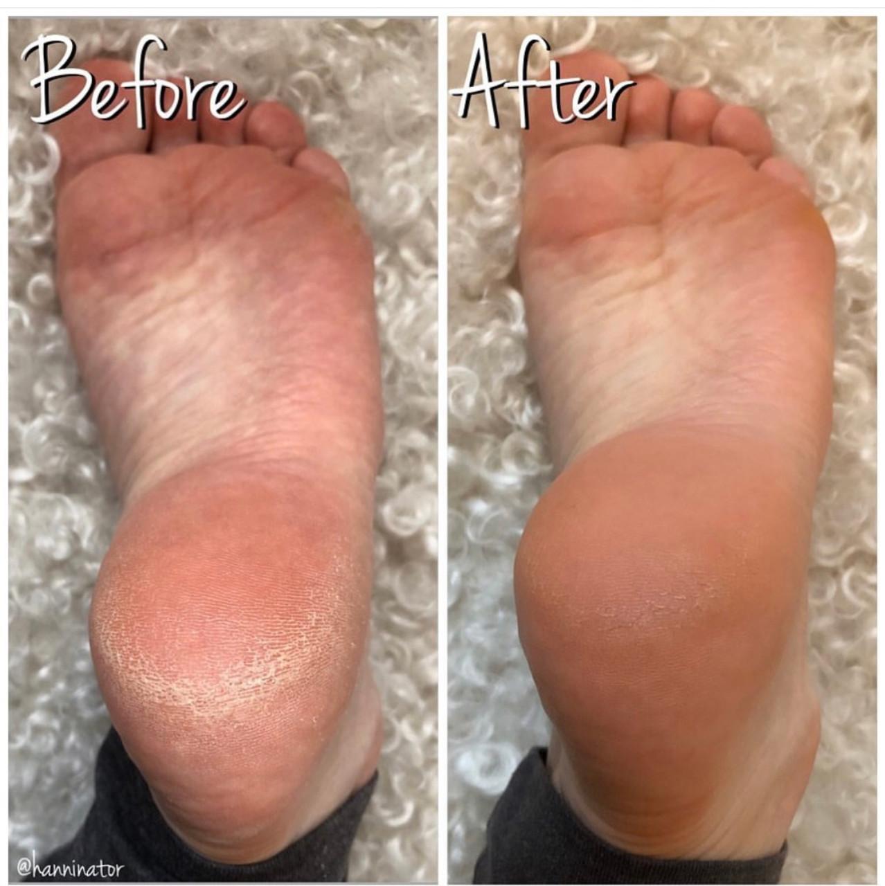 Foot Hydration Kit - Pumpkin Spice Latte Scent