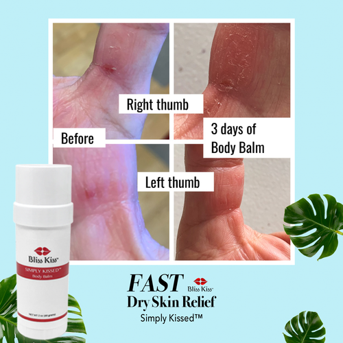 Simply Kissed™ Ultra Hydrating Body Balm
