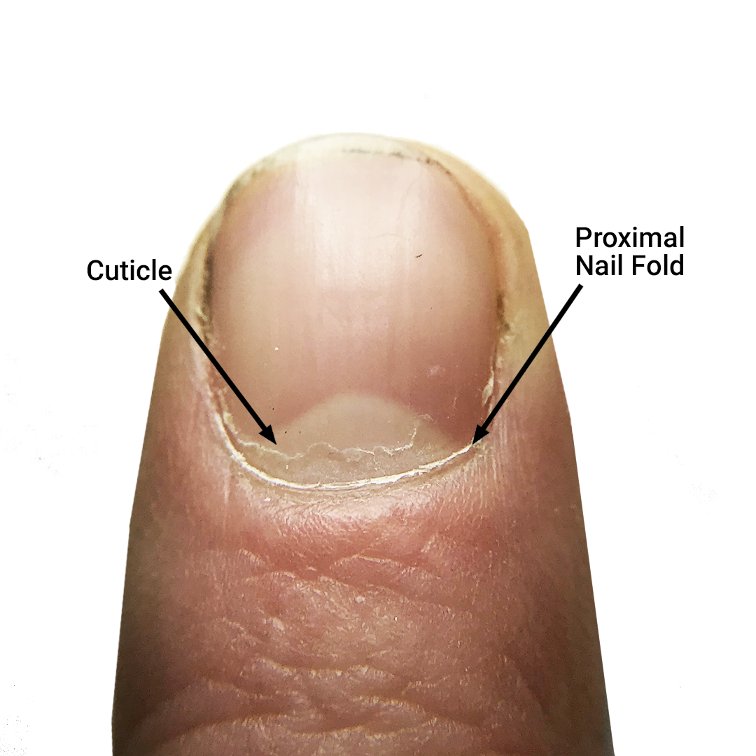 The Cuticle – Should You Clip, Push, or Scrape?