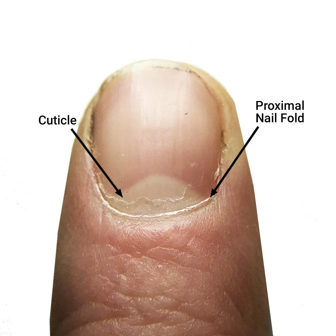 The Cuticle – Should You Clip, Push, or Scrape?