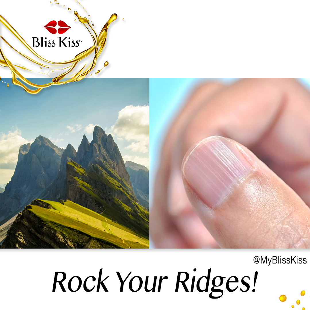 Ridges in Nails—ASK ANA
