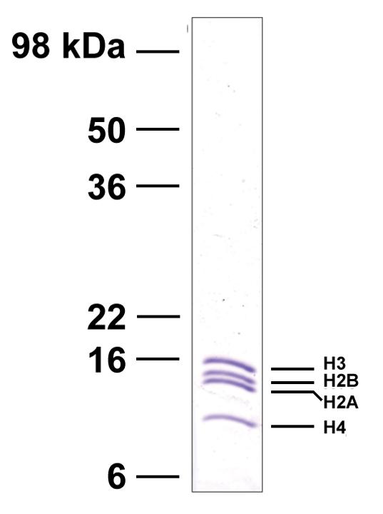 16-0006 Protein Gel