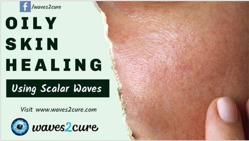 care for oily skin