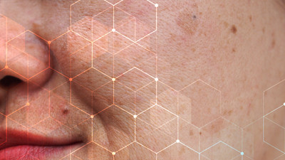 What Causes Pigmentation? How to Prevent or Correct Pigmentation