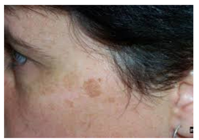 Pigmentation what causes it , how to prevent it & what can fade it ..from Nature of course not harsh chemicals