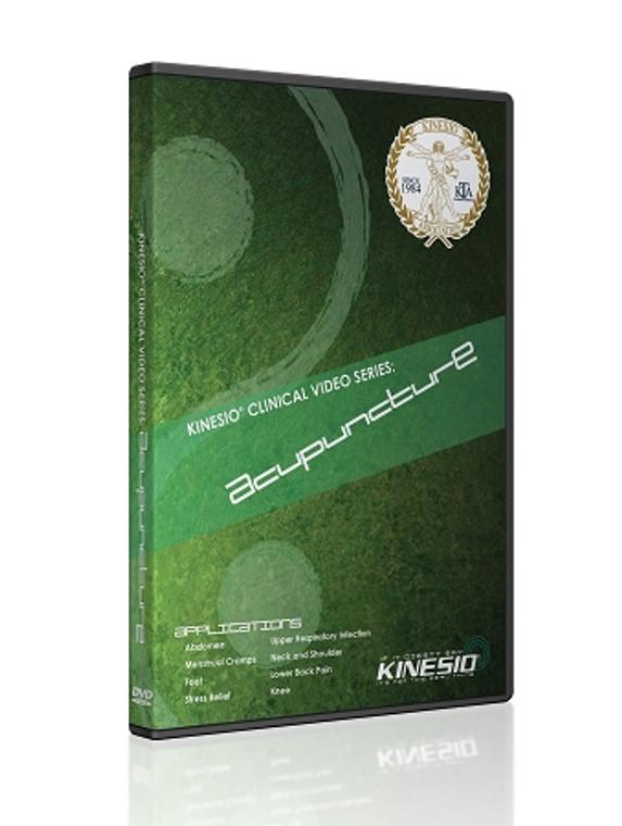 Acupuncture (DVD w/Digital Download)
