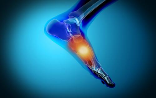 Conceptual image of pain in human foot Poster Print - Item # VARPSTSTK700056H