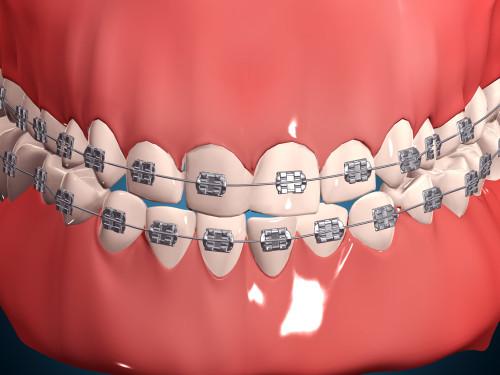 Medical illustration of human mouth showing teeth, gums and metal braces Poster Print - Item # VARPSTSTK700624H