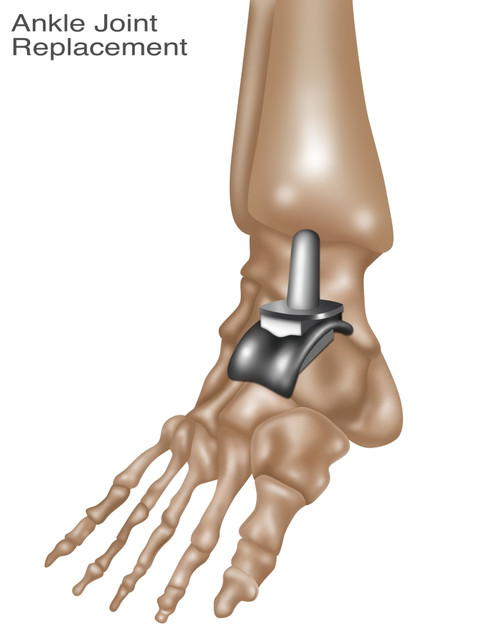 Ankle Joint Replacement, Illustration Poster Print by Gwen Shockey/Science Source - Item # VARSCIJB8512