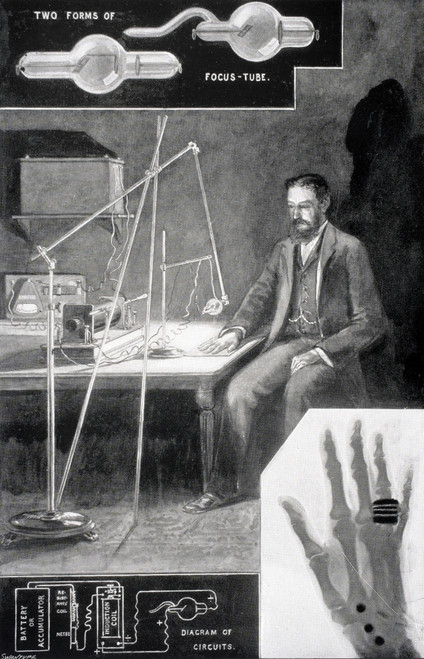 The New Photography Or X Ray Photography From The Modern Cyclopedia Vol Vi 1903 PosterPrint - Item # VARDPI1861640