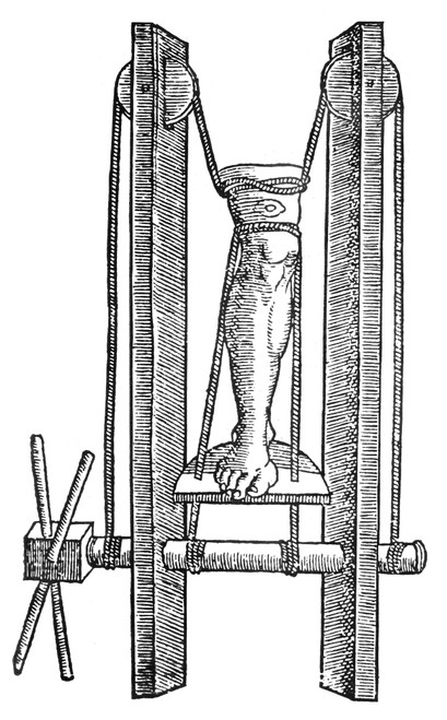 Rome: Extension Mechanism. /Na Roman Extension Mechanism For Treating Dislocated Knees. Poster Print by Granger Collection - Item # VARGRC0012996