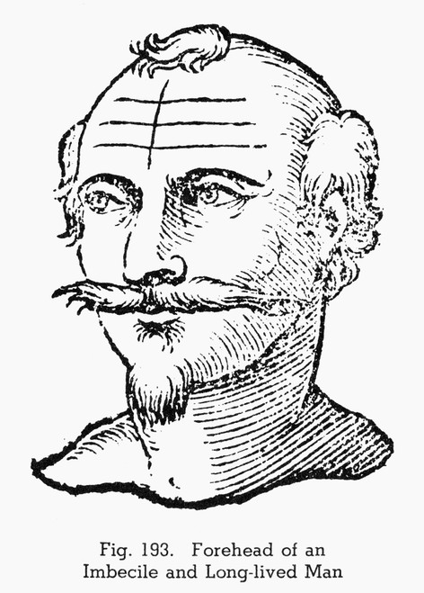 Physiognomy, 1637. /Nforehead Of An Imbecile And Long