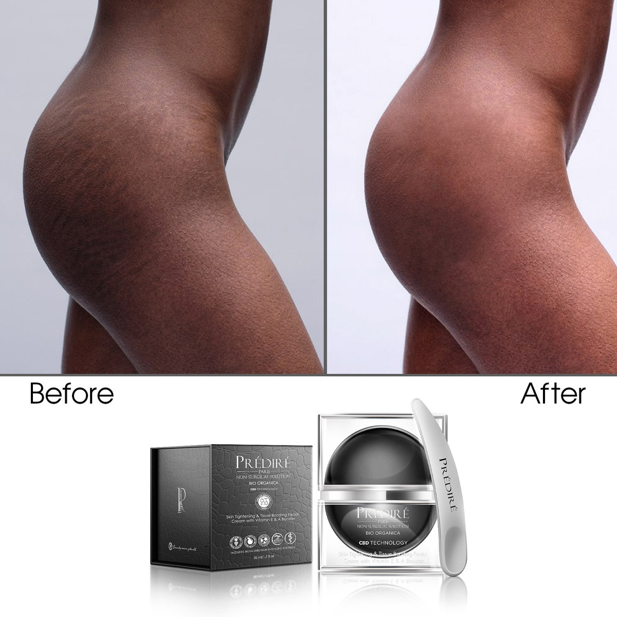 Skin Tightening Anti-Stretch Mark Cream
