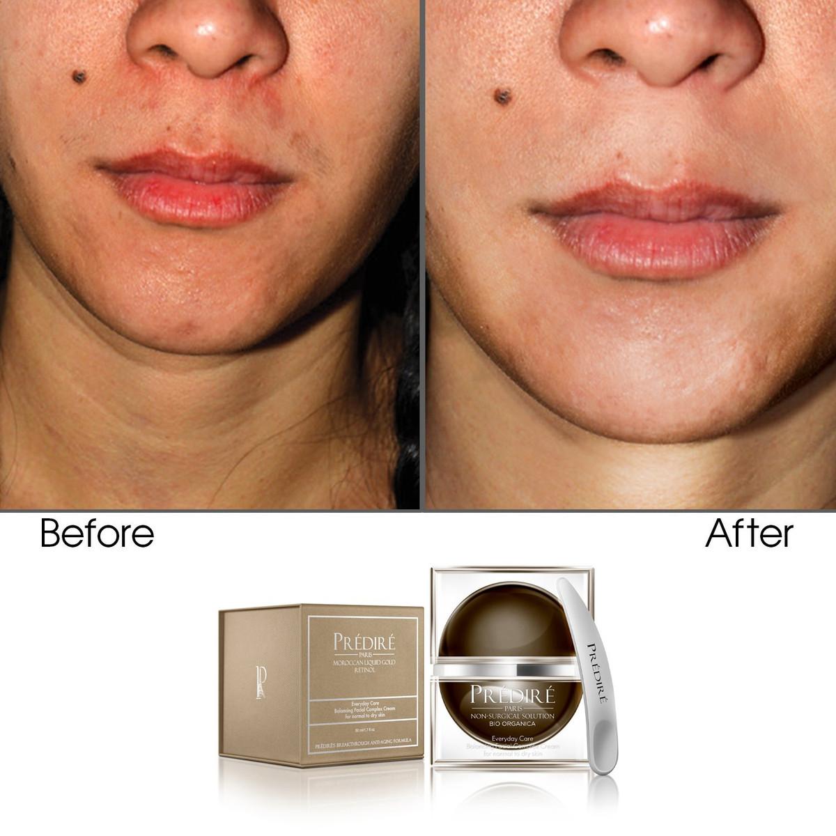 Everyday Care Balancing Facial Complex Cream