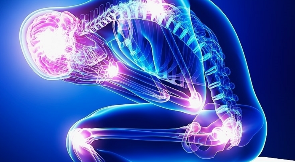 Taking CBD for Chronic Pain and Joint Pain