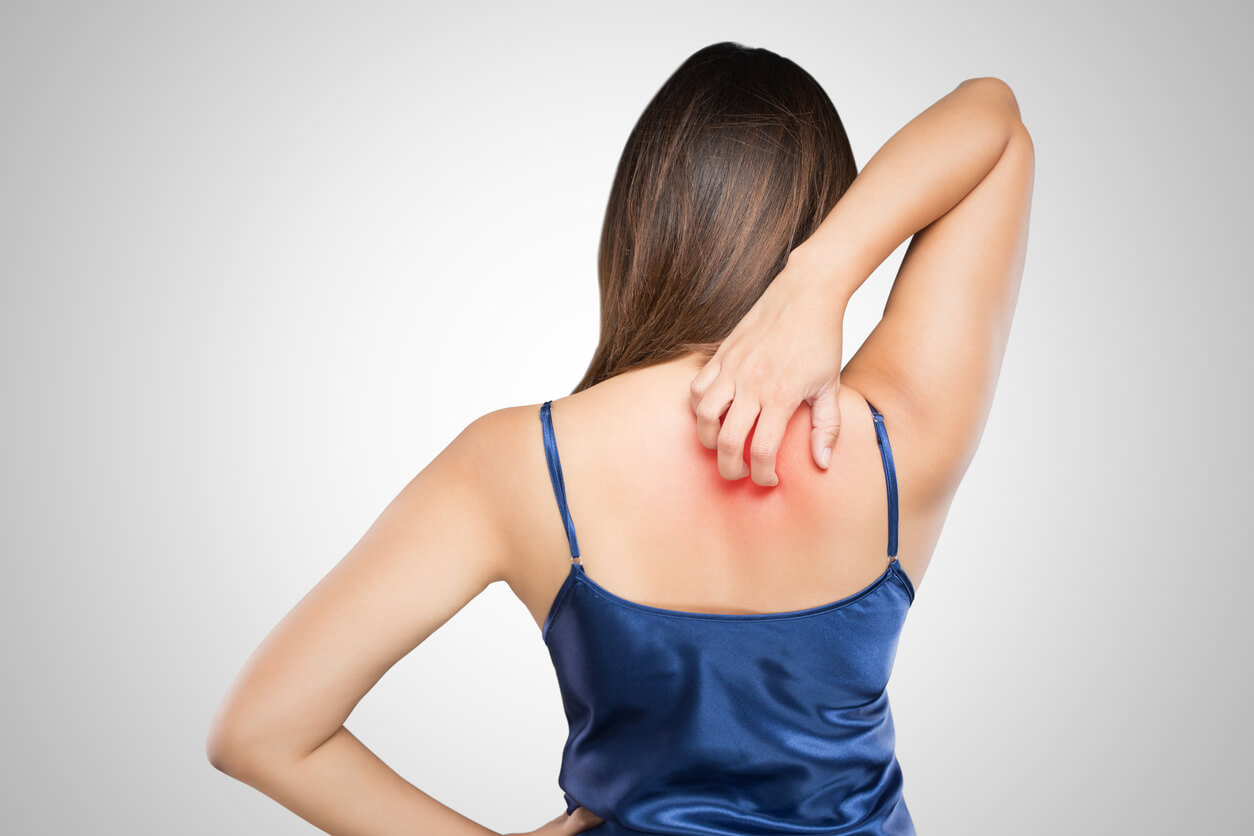 What Are Heat Hives? How to Kill the Itch This Summer - Thompson Tee