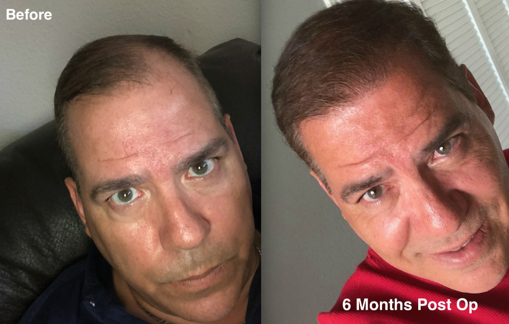 2500-grafts-hair-transplant-surgery-2-dr-rob-berberian-before-and-after-hdw4.jpg