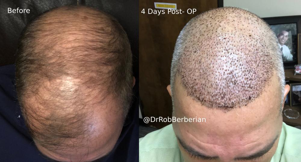 FUE Hair Transplant Dr. Rob Berberian