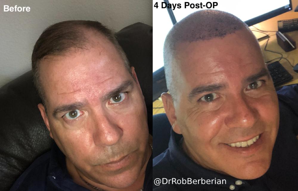 Hair Transplant Dr. Rob Berberian Los Angeles