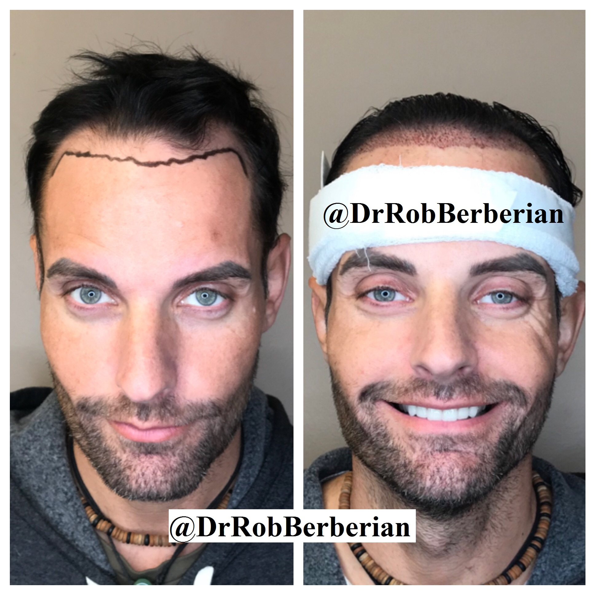 VIP FUE Hair Transplant Dr. Rob Berberian Christian Cage