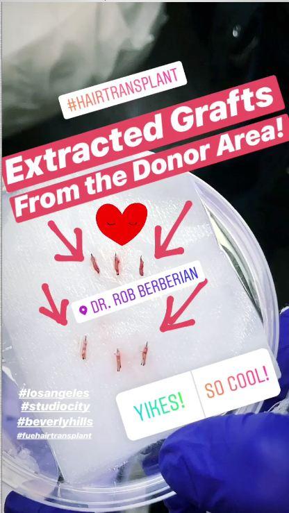 dr.-rob-berberian-fue-hair-transplant-surgery-3.jpg