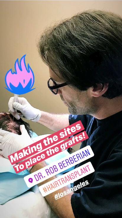 dr.-rob-berberian-fue-hair-transplant-surgery-4.jpg
