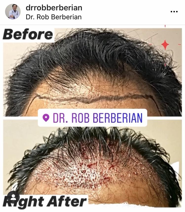 dr.-rob-berberian-hair-transplant-2.jpg