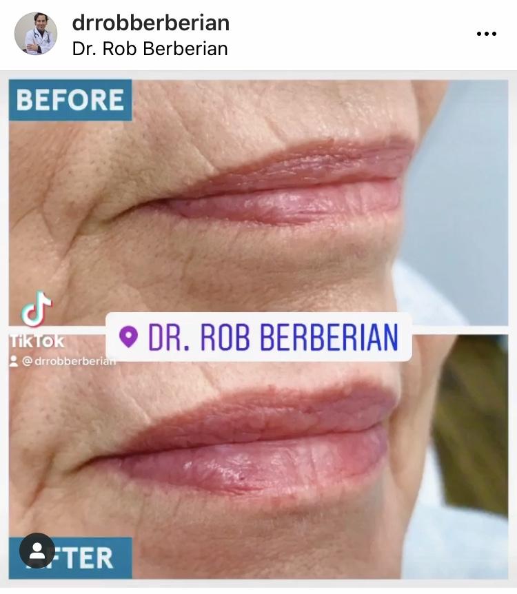 dr.-rob-berberian-lip-filler-3.jpg
