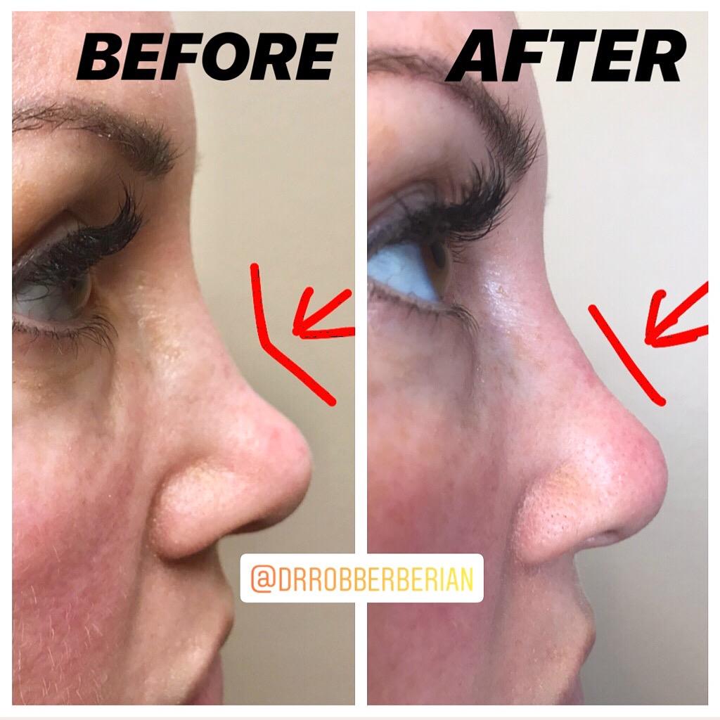 dr.-rob-berberian-nose-filler.jpg