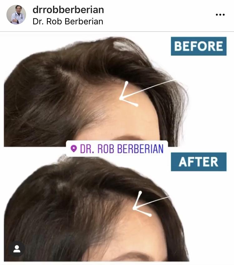 dr.-rob-berberian-prp-hair.jpg