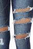 The Kary Jeans   Dark Wash Distressed Skinnies