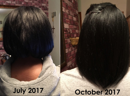 Collagen supplements for hair growth reviews